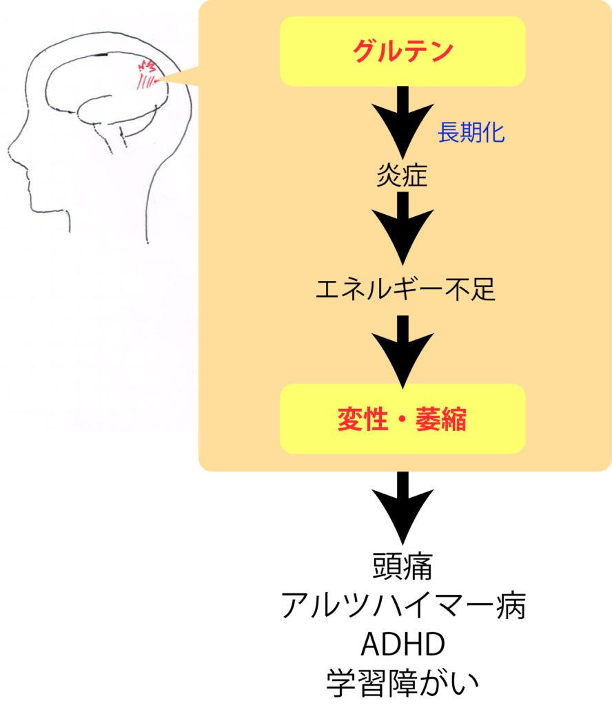グルテンによる炎症は認知機能に影響を及ぼす