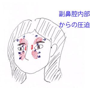 副鼻腔内部からの圧迫の様子