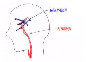 海綿静脈洞と内頚動脈の位置