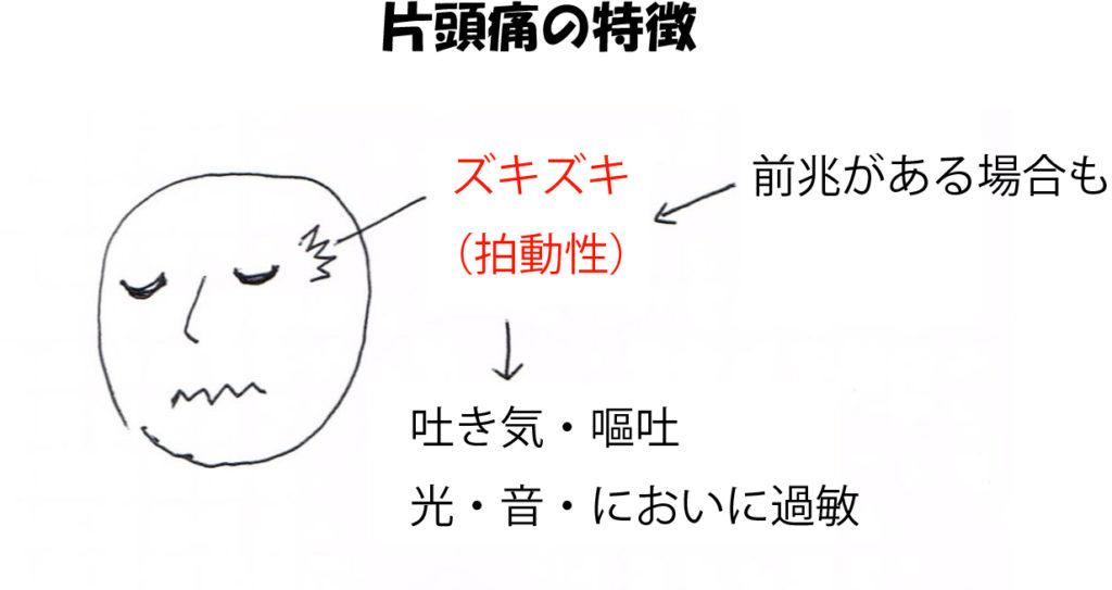 片頭痛の特徴