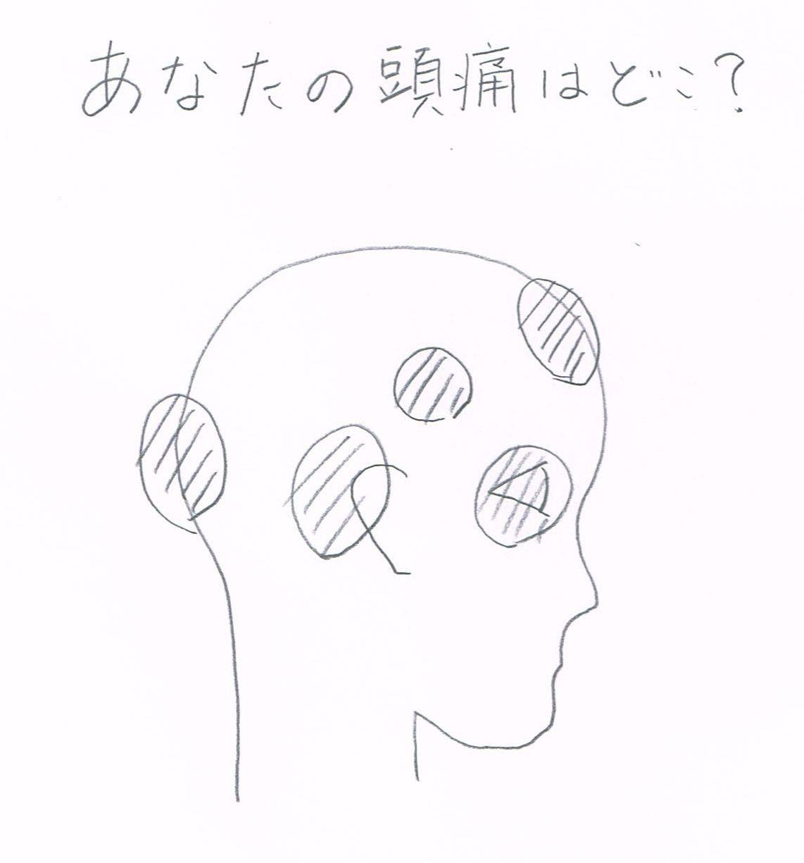 あなたの頭痛はどこに出やすいですか?